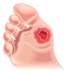 Drawing Showing Diabetic Foot Showing Lesion