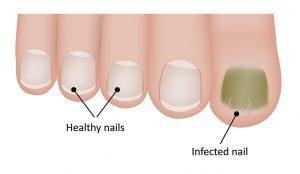 Drawing Showing Healthy Nails vs. Infected Nail