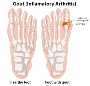Diagram explanation of Gout in human foot