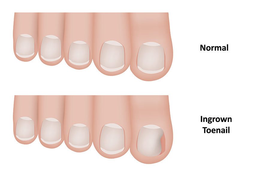 Ingrown Toenail Treatment In Frisco Rnv Podiatry