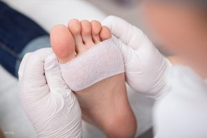How Are Stress Fractures Treated?
