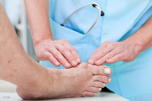 Signs You Need Bunion Treatment