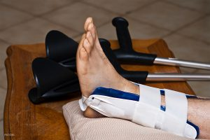 Tips to Recover Faster from a Stress Fracture