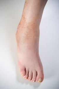 Close Up of Foot with an Ankle Stress Fracture