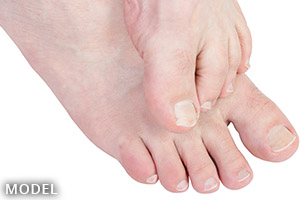 person showing bare toes and nails